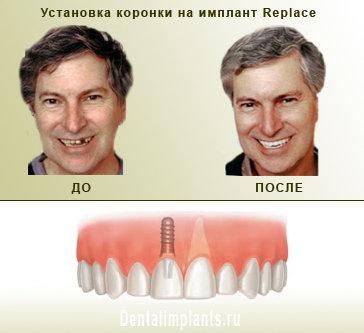 implant6.jpg